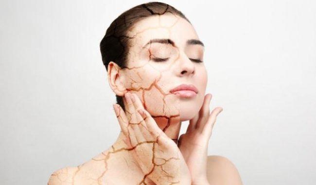 Donna che mostra la pelle idratata e la pelle secca del viso